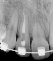 Endodontics – Orthodontics relation, progress and inter-action